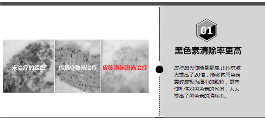 四大技术优势-1 黑色素清除率更高.jpg