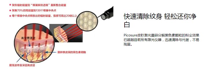 皮秒激光可以快速清除纹身,是清除纹身仪器